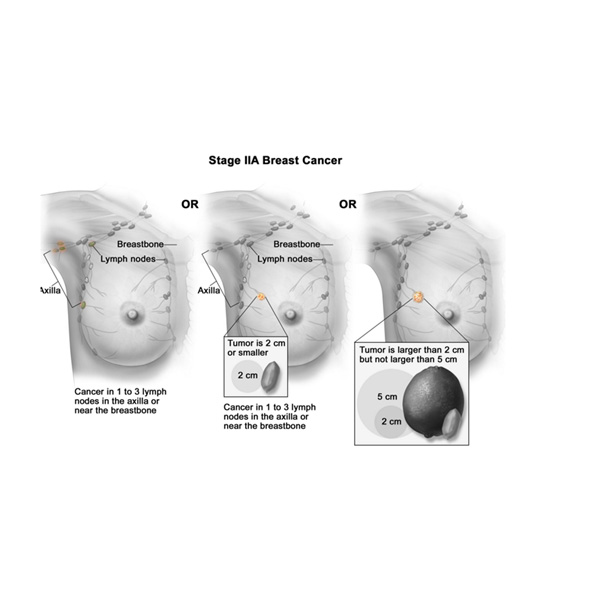 essays on breast cancer treatment Breast cancer is a cancer that begins in breast tissue other than skin cancer, breast cancer is the most common cancer among women in the united states screening can increase your chance of survival with breast cancer if you catch it early.